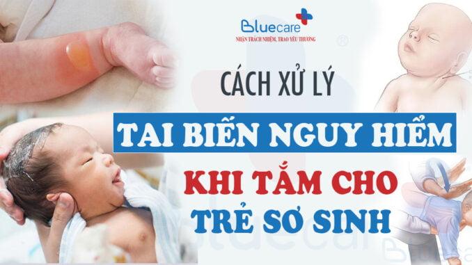 nhung-tai-bien-nguy-hiem-khi-tam-cho-tre-so-sinh-va-cach-xu-ly